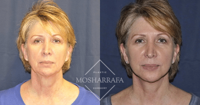 Facelift Case #160 Before After Pictures Arizona