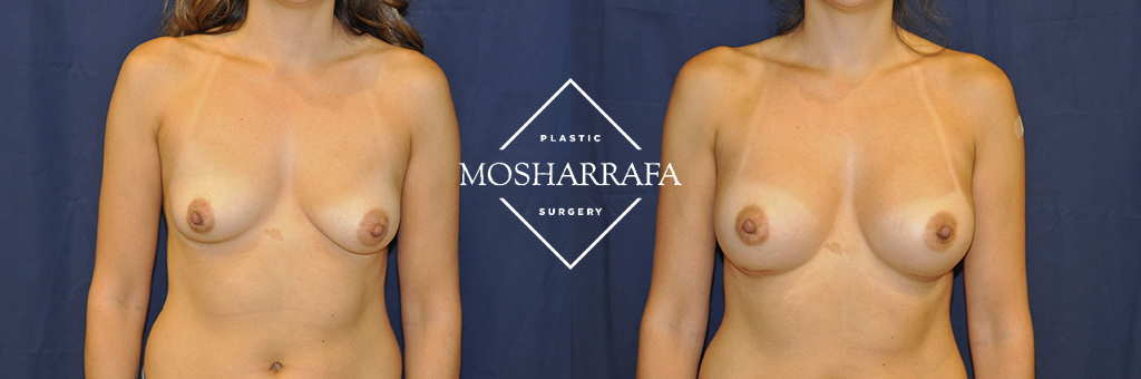 Breast Augmentation Before & After Photos Phoenix