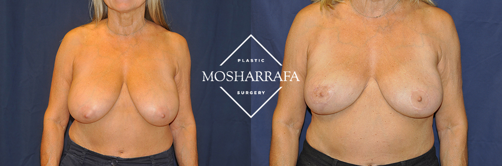 Breast Reduction Before & After Photos Phoenix